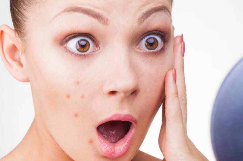 В косметологии мелиссу используют для борьбы с воспалением и угревой сыпью